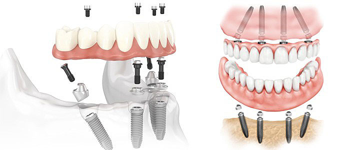 Dental implants and their major advantages