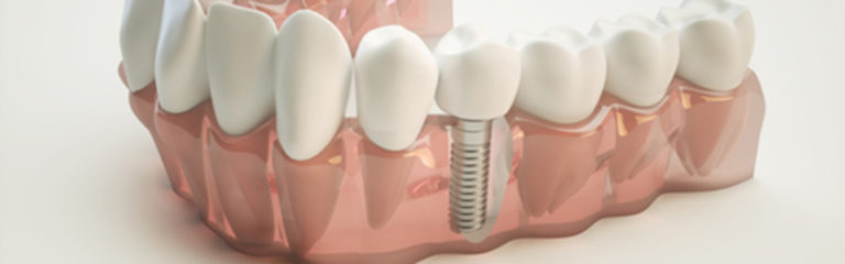 Dental Implants for Tooth Loss