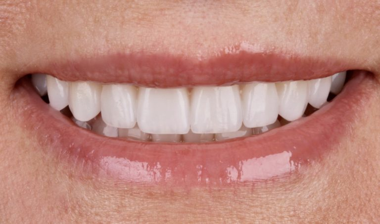 Cosmetic Dentistry Methods for the Beauty of Your Teeth